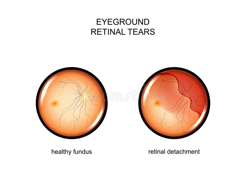 Fundus. retinal tears. Vector illustration of the fundus. retinal tears stock illustration