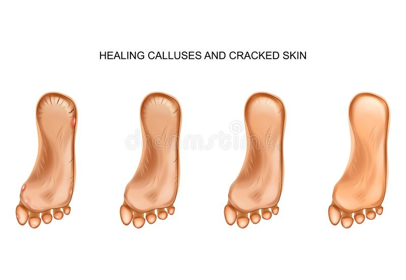 Healing calluses and cracked heels stock illustration