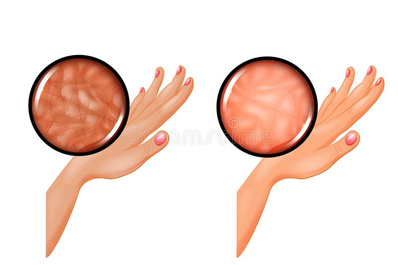 Healthy skin and dry, wrinkled. Vector illustration of healthy skin and dry, wrinkled stock illustration
