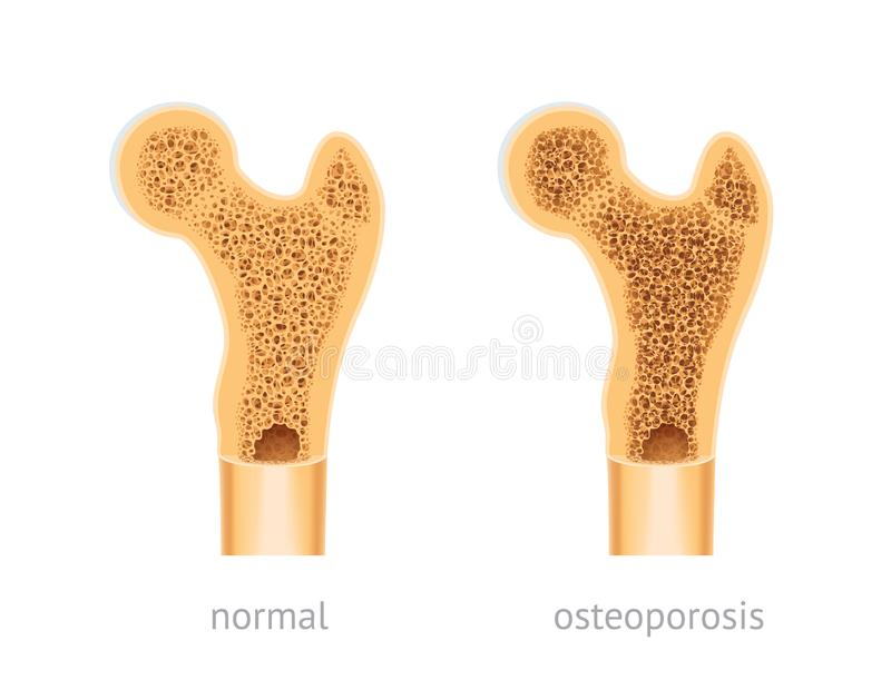 Healthy and osteoporosis human bone. Vector illustration of human Bone, healthy and with osteoporosis stock illustration