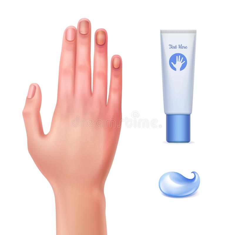 Gel from bruises. Vector illustration of injured hand and tube gel for bruises with drop of cream and on white background stock illustration