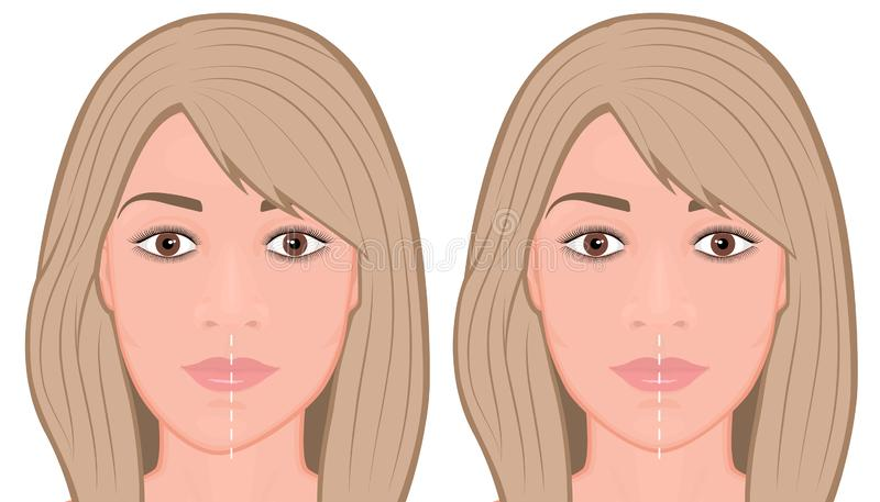 Face front_Jaw asymmetry correctiom surgery Face royalty free illustration