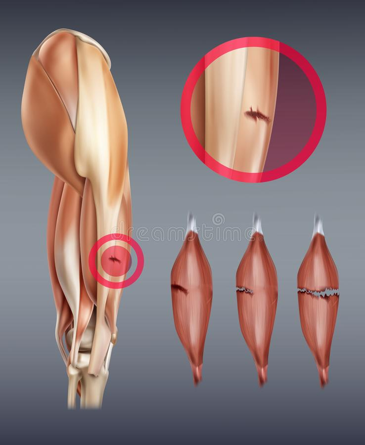 Vector illustration of leg muscle injury with rupture at different stages. Isolated on background stock illustration