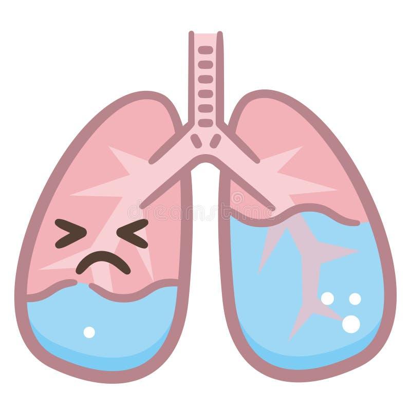 Pulmonary Edema - Medical Concept Stock Illustration