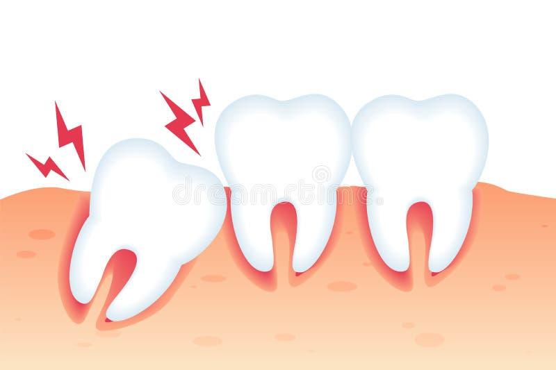 Vector Illustration Pain from Wrong Bite Flat. stock illustration