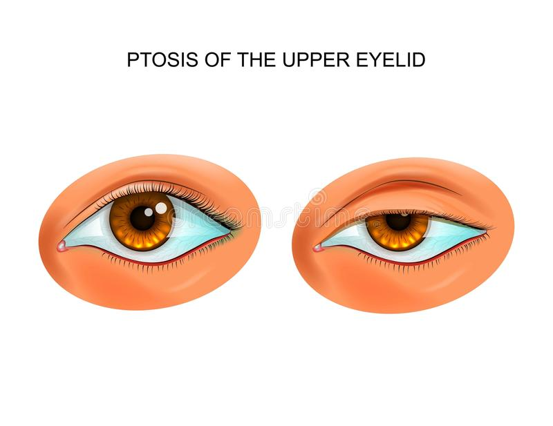 Ptosis of the eyelid. Vector illustration of ptosis of eyelid. paralytic drooping of the eyelid vector illustration