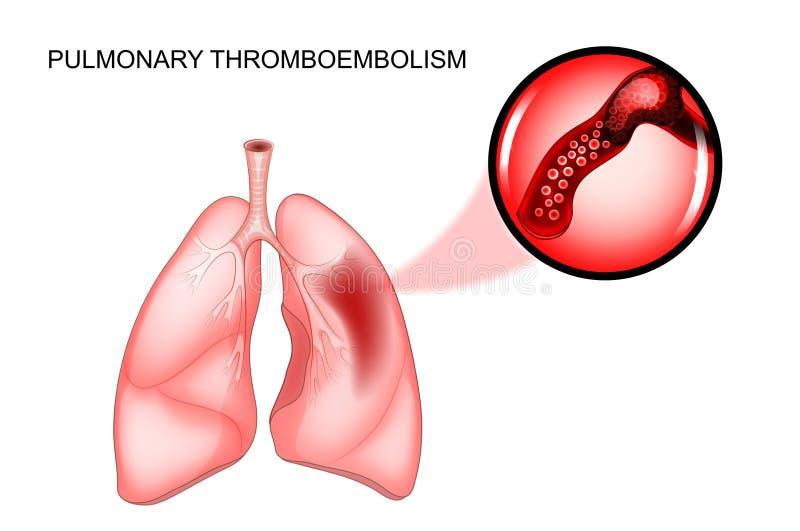 Pulmonary thromboembolism. thrombosis. Vector illustration of pulmonary thromboembolism. thrombosis of the vessel stock illustration