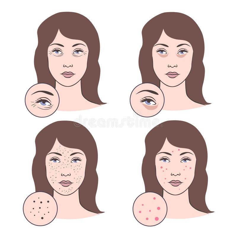 Vector illustration of skin problems stock illustration