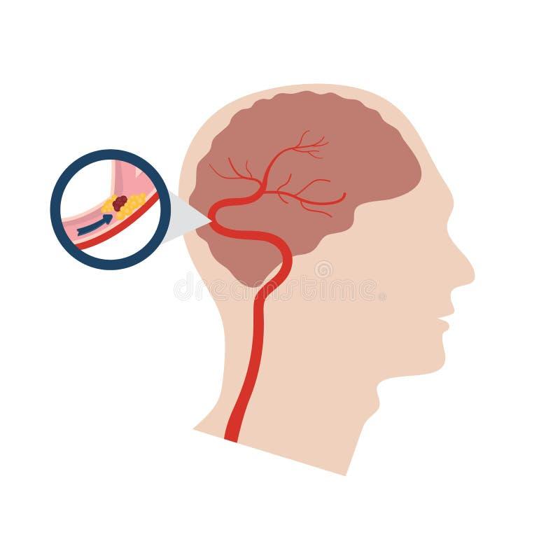 Vector illustration of a stroke vector illustration