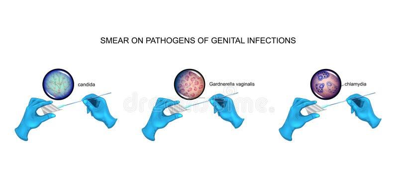 Smear, candidiasis, vaginosis, chlamydia vector illustration
