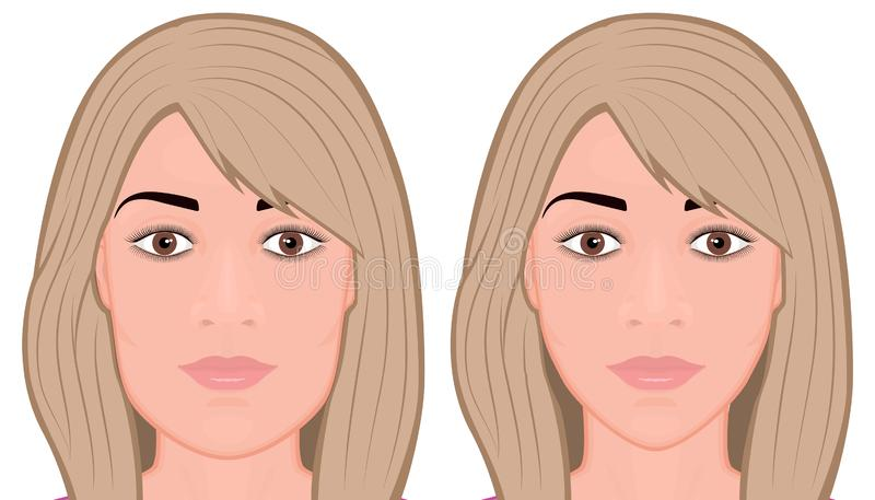 Face front_Jaw reduction surgery Face stock illustration