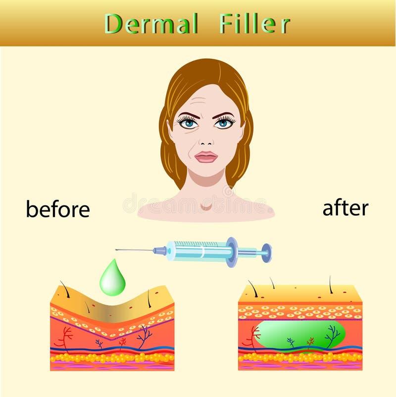 Vector a ilustração com enchimento cosmético ou enchimentos cutâneos no fundo claro ilustração royalty free