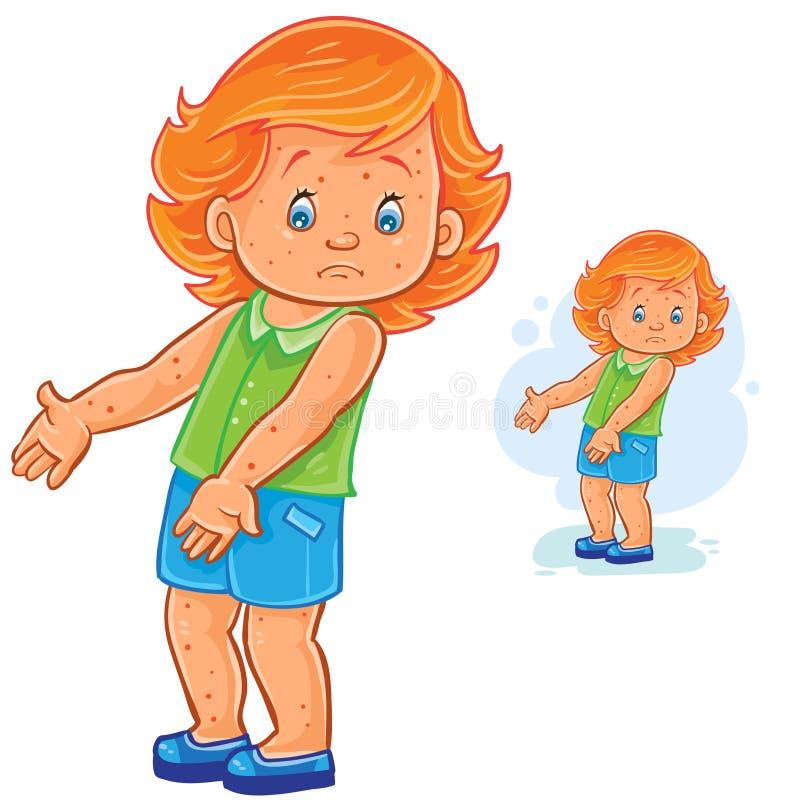 Vector kleines Mädchen mit einem Hautausschlag auf Haut, Pocken, Windpocken, Räude, Allergie vektor abbildung