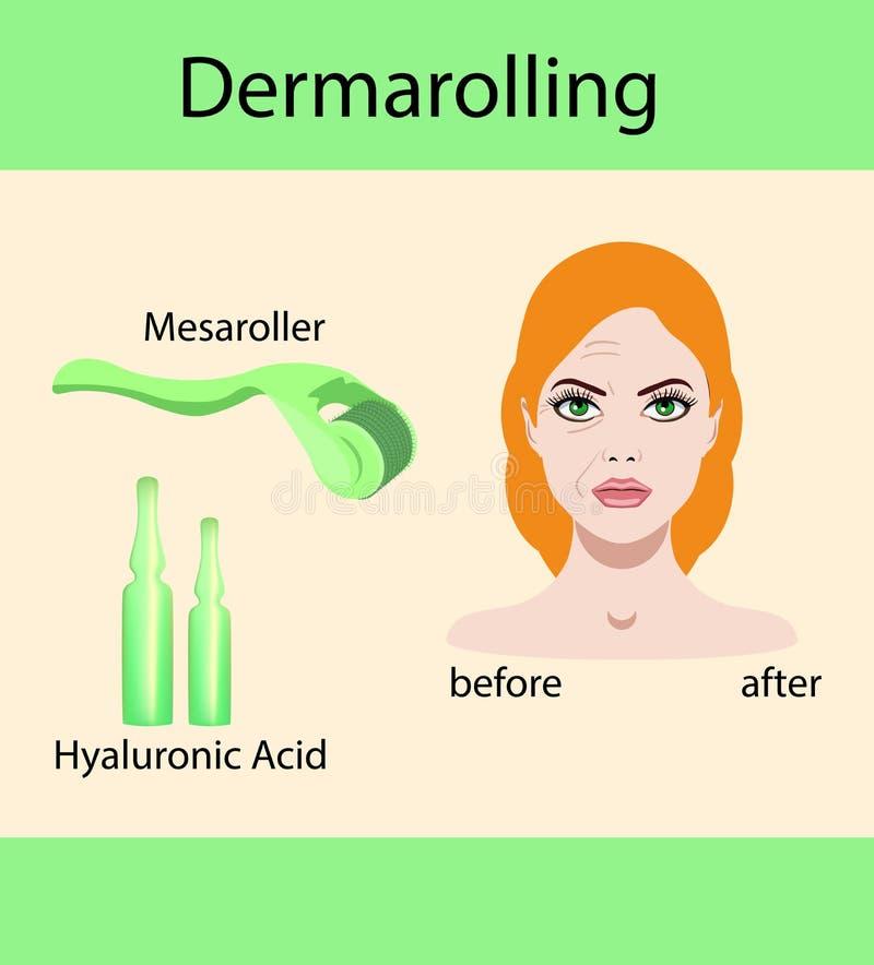 Vector l'illustrazione, derma che mesorolling e prima dopo l'effetto illustrazione di stock