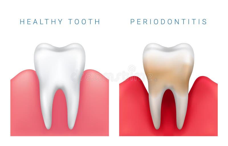 Vector medizinische Illustration des realistischen gesunden Zahnes und des perio stock abbildung