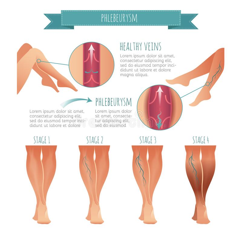 Vector Phlebology infographic Etapa de las enfermedades de la vena libre illustration