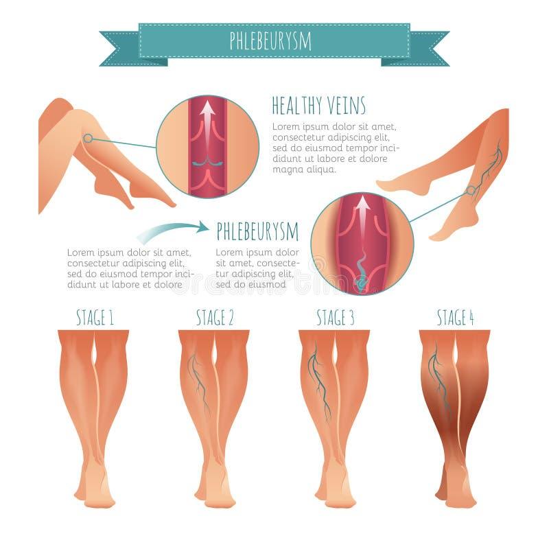 Vector Phlebology infographic Etapa de las enfermedades de la vena ilustración del vector