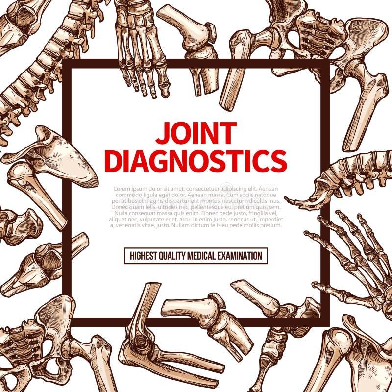 Vector poster for joint medical diagnostics stock illustration