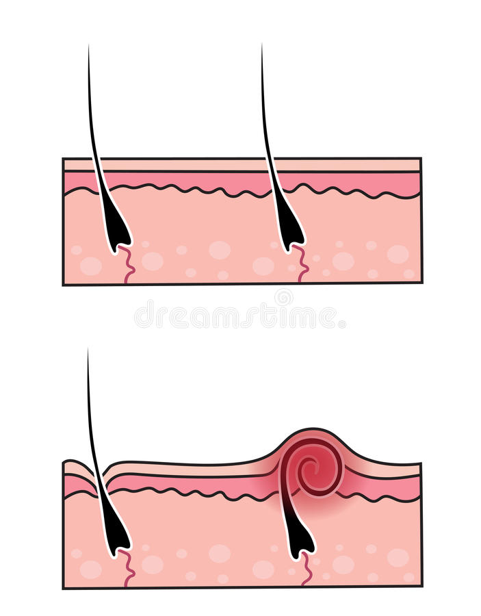 Vector que cavara el pelo libre illustration
