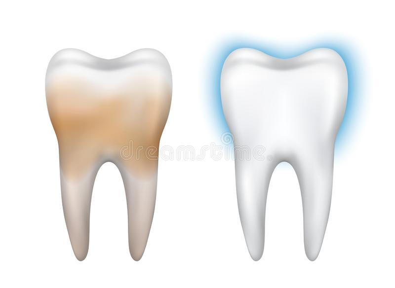 Vector realistic dirty and clean tooth model - whitening, dental hygiene, health.  vector illustration