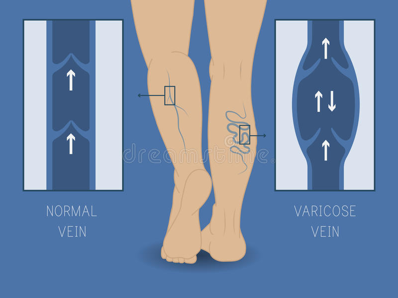 Vector varicose vein and normal vein. Slender and beautiful female legs. royalty free illustration