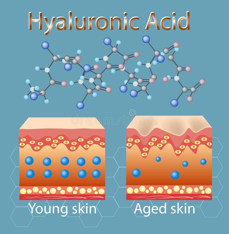 Vectorillustratie met proces om huid te krijgen oud wegens gebrek aan hyaluronic zuur stock illustratie