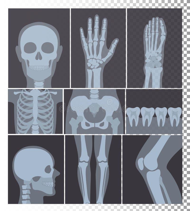 Vectorillustratie van de realistische inzameling van Röntgenstralenschoten Röntgenfoto's van hoofd, beenderen, geplaatste tanden, royalty-vrije illustratie