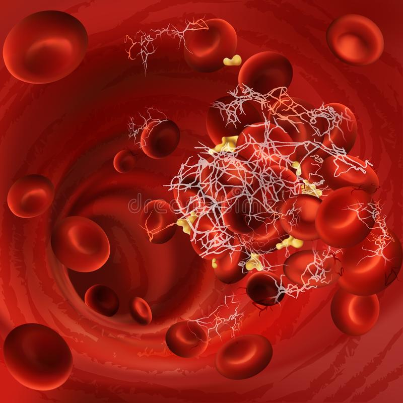 Vectorillustratie van een bloedstolsel, een bloedprop of een embolus met gecoaguleerde rode bloedcellen, plaatjes in het bloedvat vector illustratie