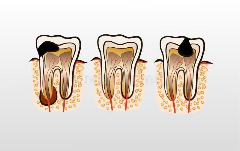 Vectorillustratie van het Bederf van het tandbederf vector illustratie