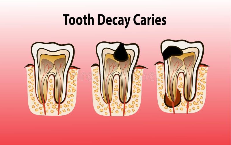 Vectorillustratie van het Bederf van het tandbederf stock illustratie