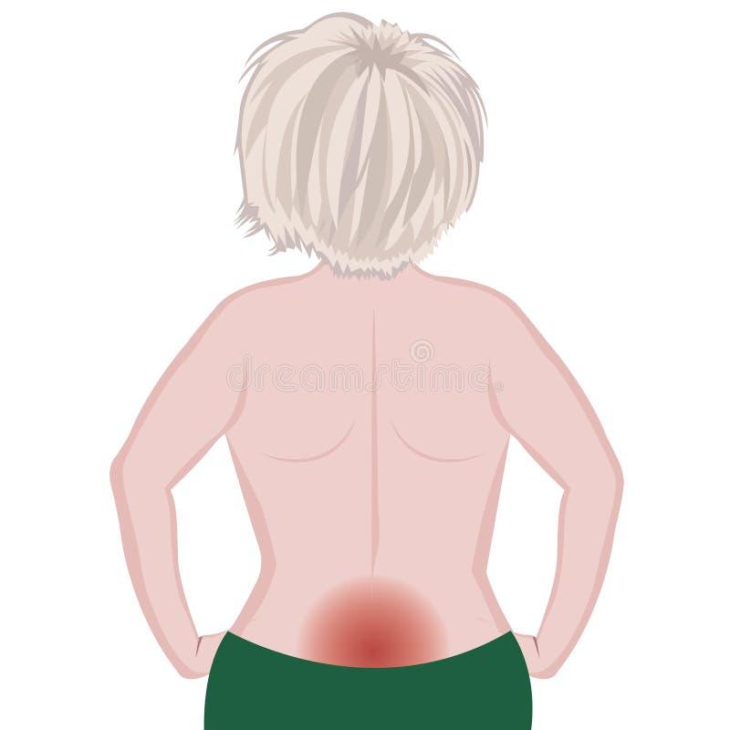 Vectorillustratie van het rugpijn de vrouwelijke lichaam royalty-vrije illustratie