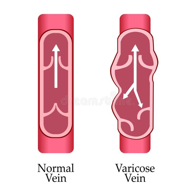 Veia varicosa do vetor e veia normal Veia varicosa ilustração do vetor