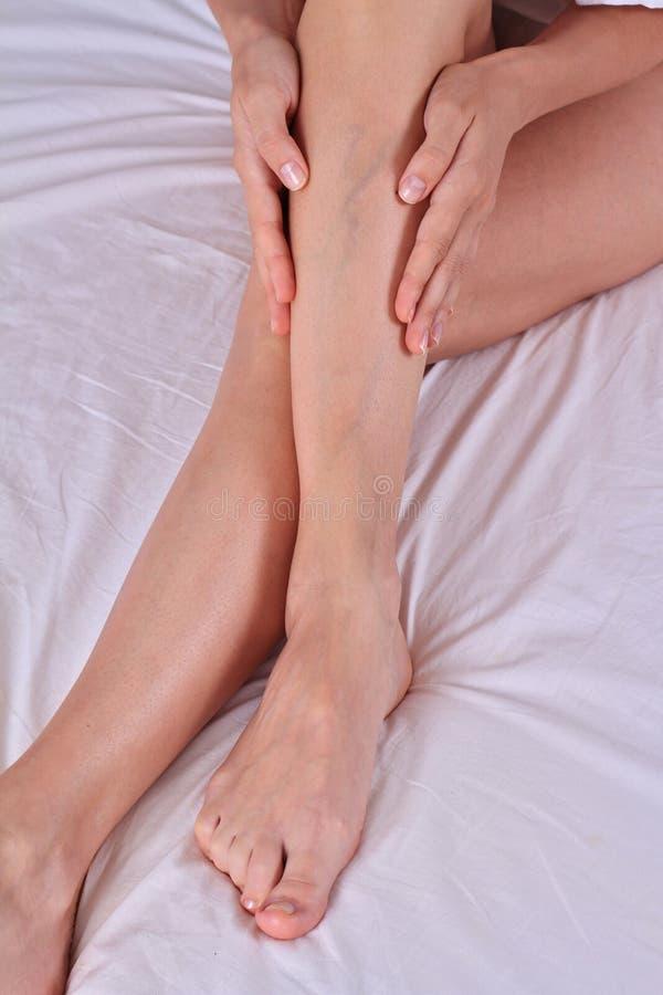Veias dolorosas varicosas e da aranha nos pés fêmeas Mulher que faz massagens seus pés cansados foto de stock royalty free