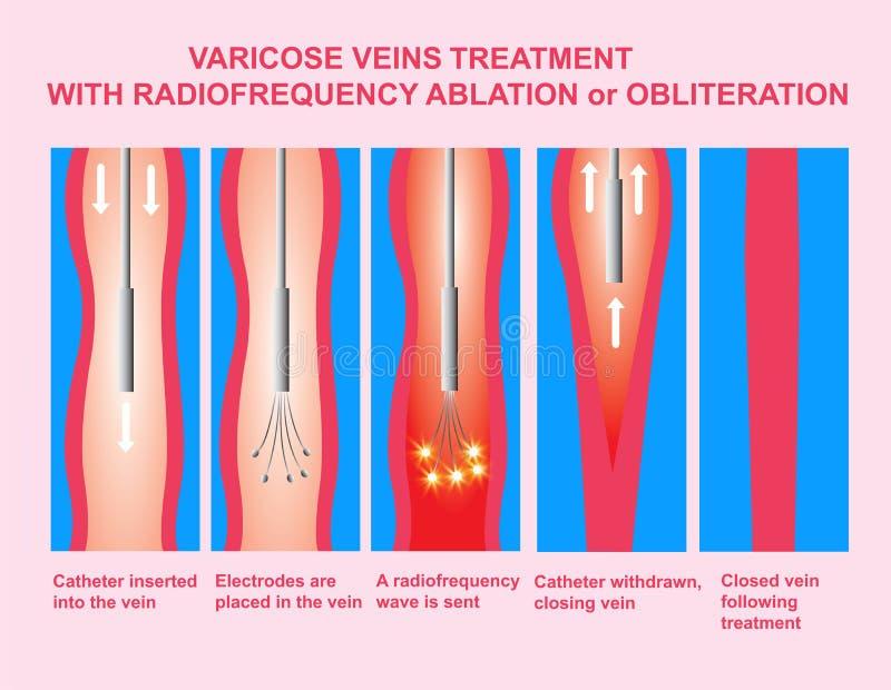 Veias varicosas e tratamento com ablação da radiofrequência ilustração do vetor