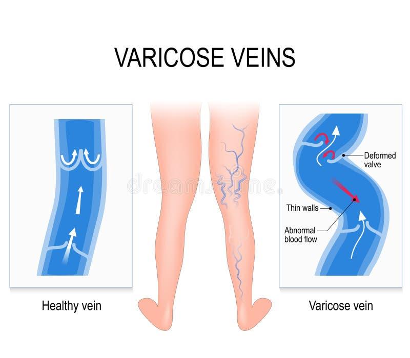Veias varicosas Ilustração médica ilustração royalty free