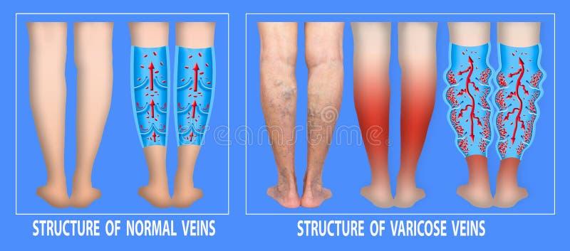 Veias varicosas no p?s superiores f?meas A estrutura das veias normais e varicosas ilustração stock