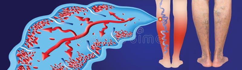 Veias varicosas no p?s superiores f?meas A estrutura das veias normais e varicosas ilustração do vetor