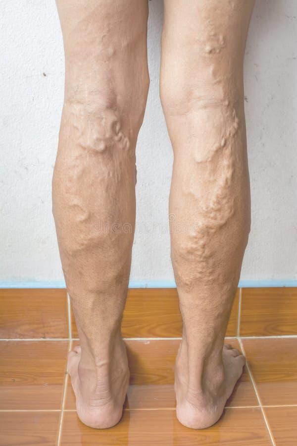 Veines variqueuses irrégulières sur des jambes de femme photo libre de droits