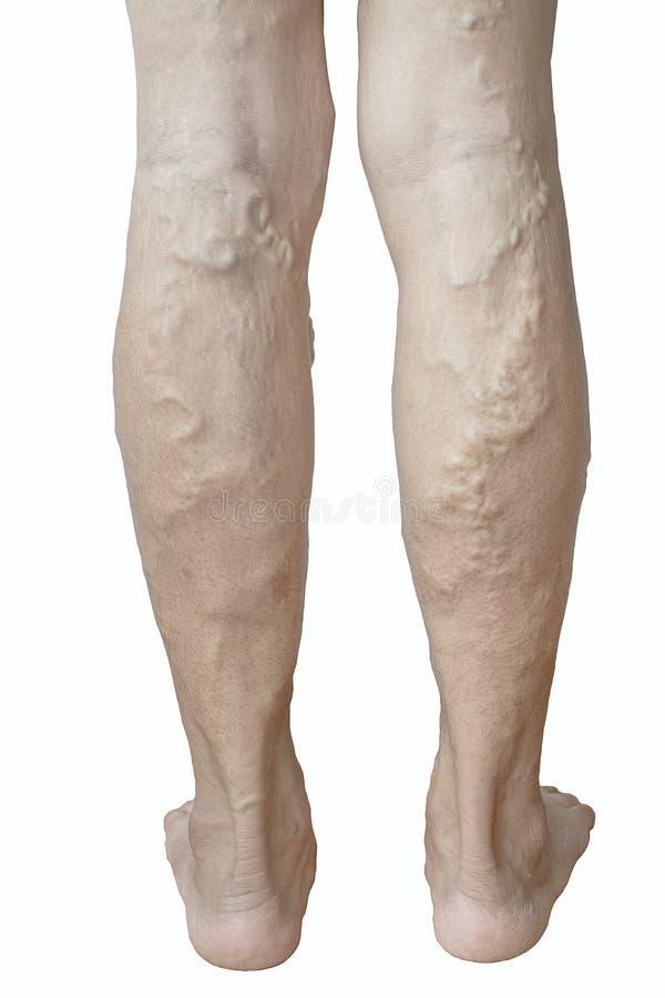 Veines variqueuses irrégulières sur des jambes de femme photos libres de droits