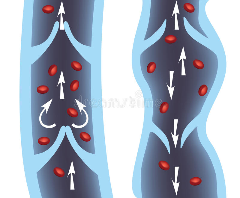 Veins. Normal vein and varicose vein illustration. Venous Insufficiency, varicose veins medical illustration