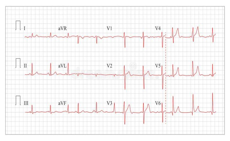 Vektor för hjärtakardiogramdiagram Sunt hjärtaelektrokardiogram, puls vektor illustrationer