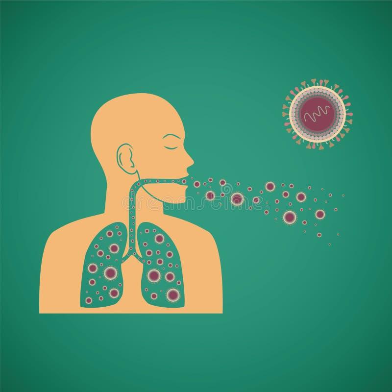 Vektorbegrepp av den respiratoriska patogna viruset för man royaltyfri illustrationer
