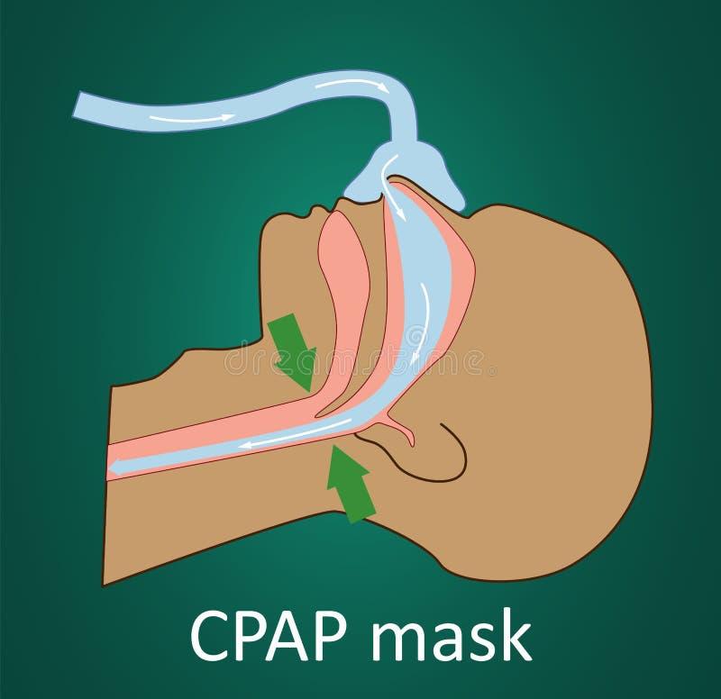 Vektorillustration av andning med CPAP-maskeringen stock illustrationer