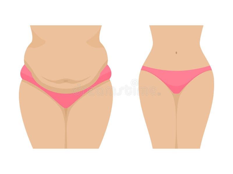 Vektorillustration av ett fett och en tunn kvinnlig buk vektor illustrationer