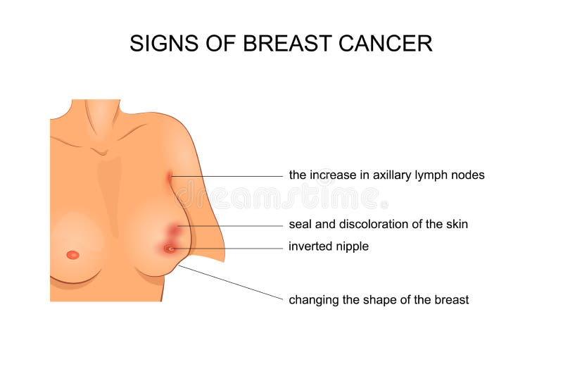 Vektorillustration för medicinska publikationer cancerkirurgi stock illustrationer