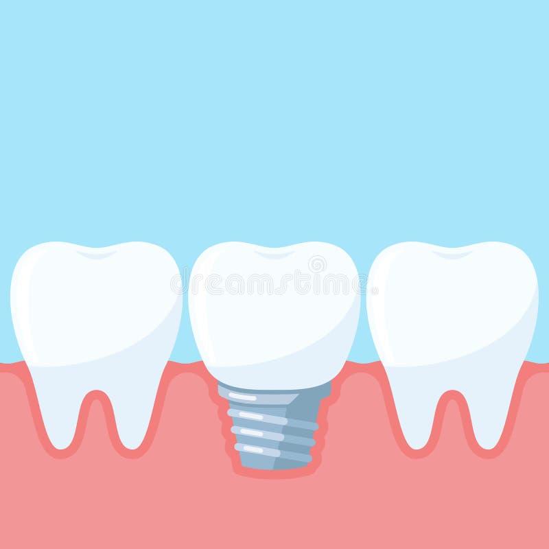 Vektorillustration för tand- implantat royaltyfri illustrationer