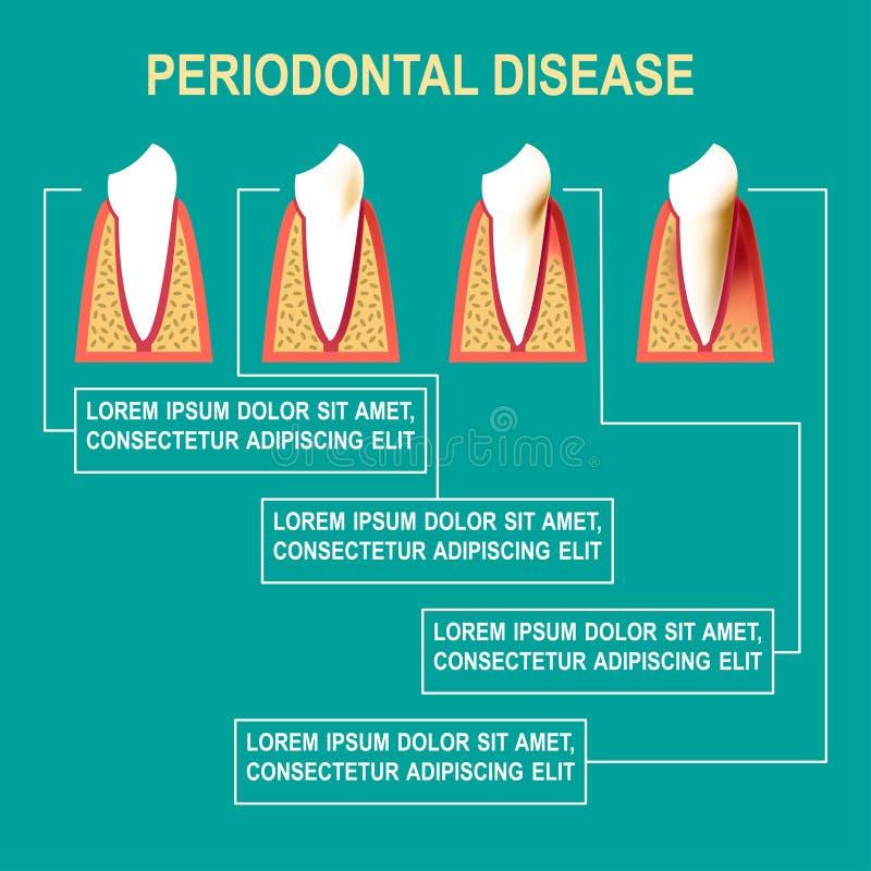 Vektorillustration för tandrot- sjukdom stock illustrationer
