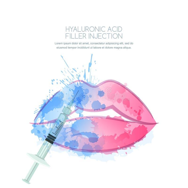 Vektorillustration von Hyaluronsäurefüllereinspritzungen Weibliche Lippen und Spritze des Aquarells im Wasser spritzt vektor abbildung