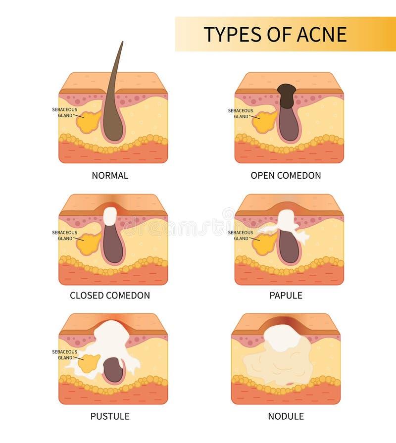 Vektortyper av hud royaltyfri illustrationer