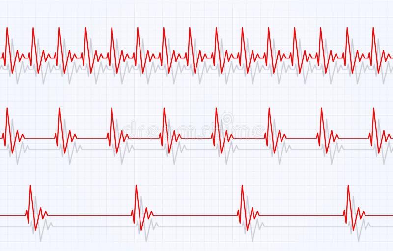 Velocidad del golpeo del corazón ilustración del vector